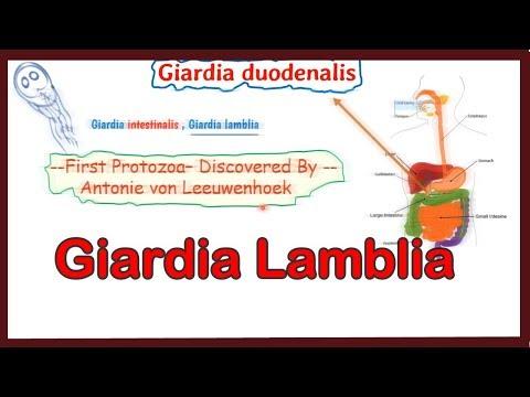 giardiasis táplálkozási kezelés)