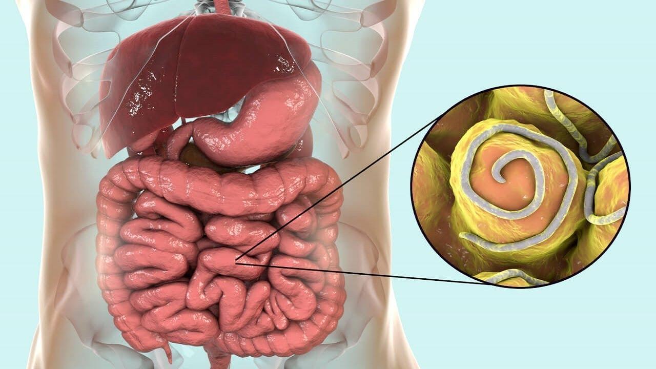 hogyan lehet eltávolítani a pinworms- t felnőtteknél)