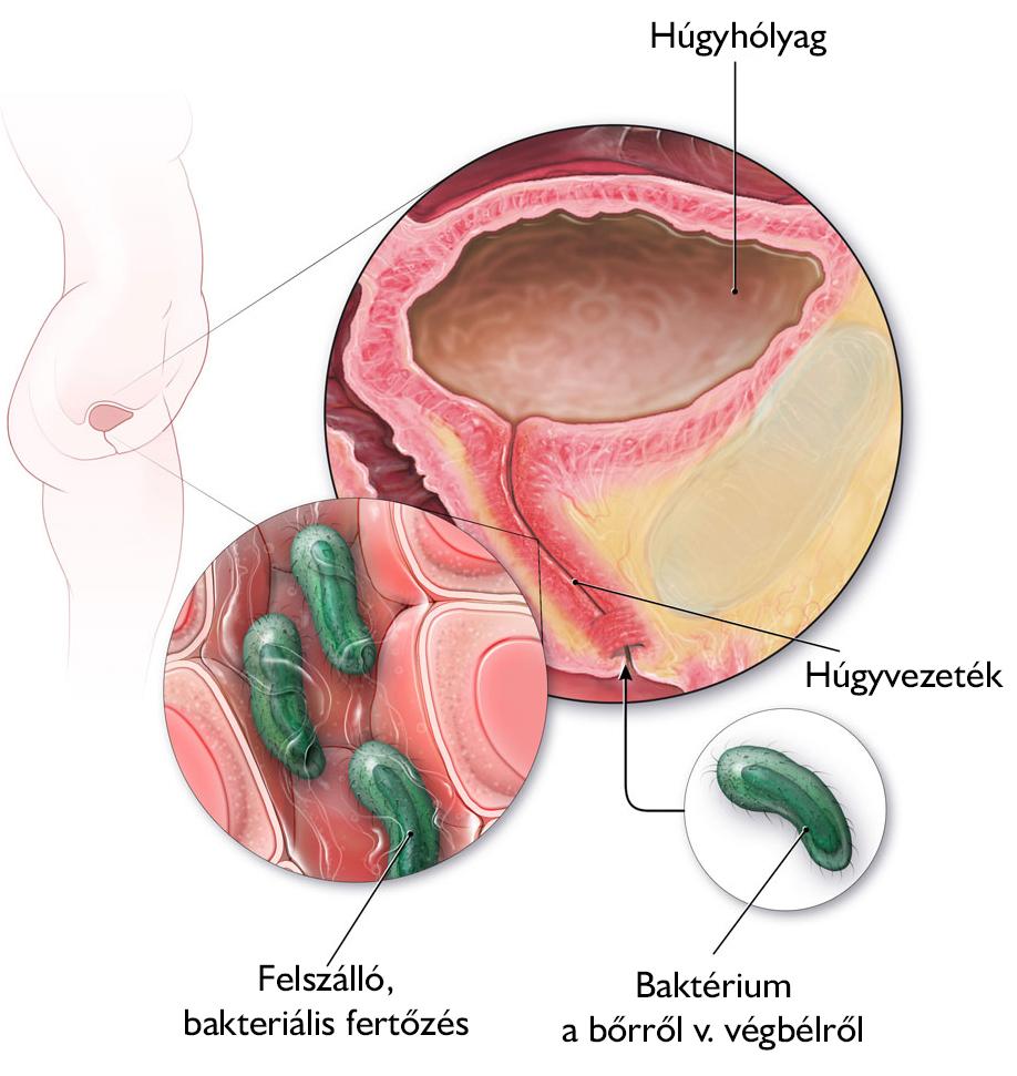 A vesegyulladás fajtái és tünetei