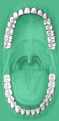 küzdj a szájszag ellen