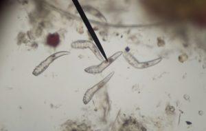 férgek petesejtjei a széklet tünetek kezelése