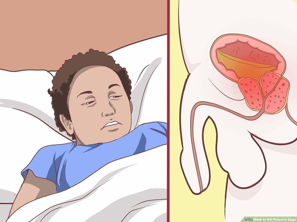 pinworm hagyma