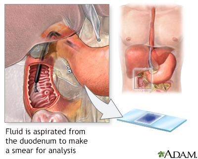 giardia duodenal aspirate