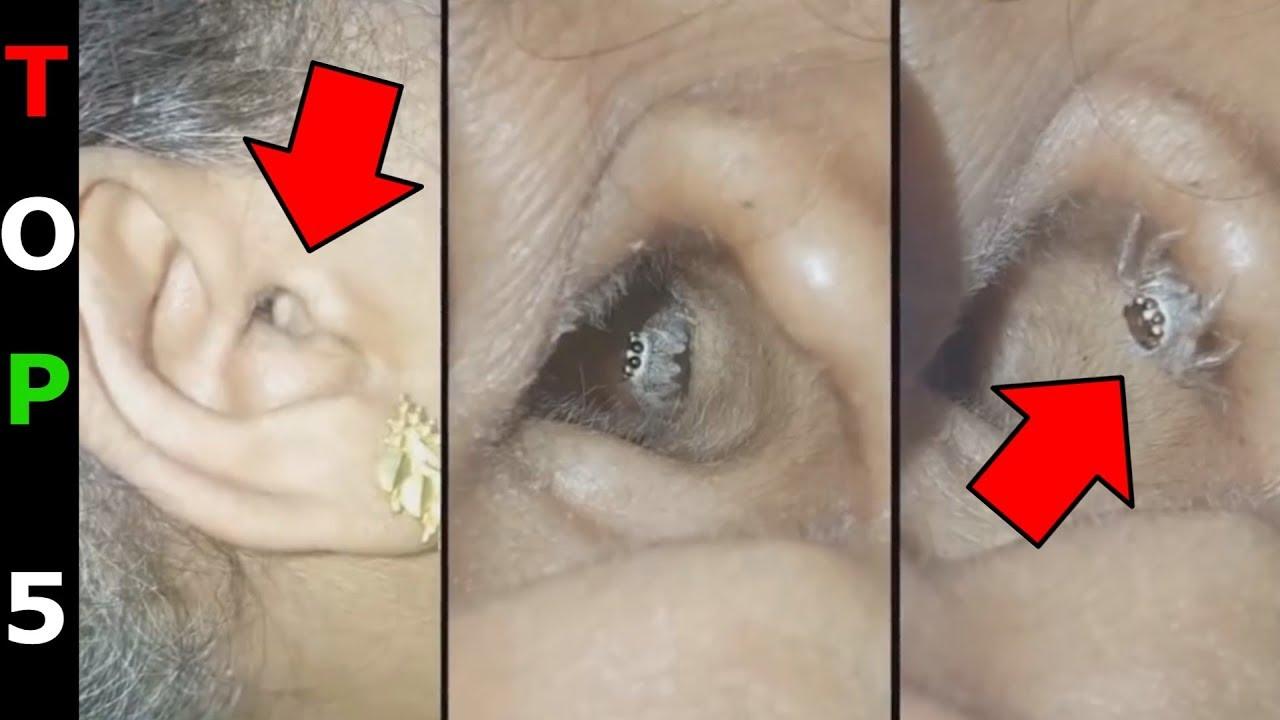 emberi bőrben burjánzó paraziták