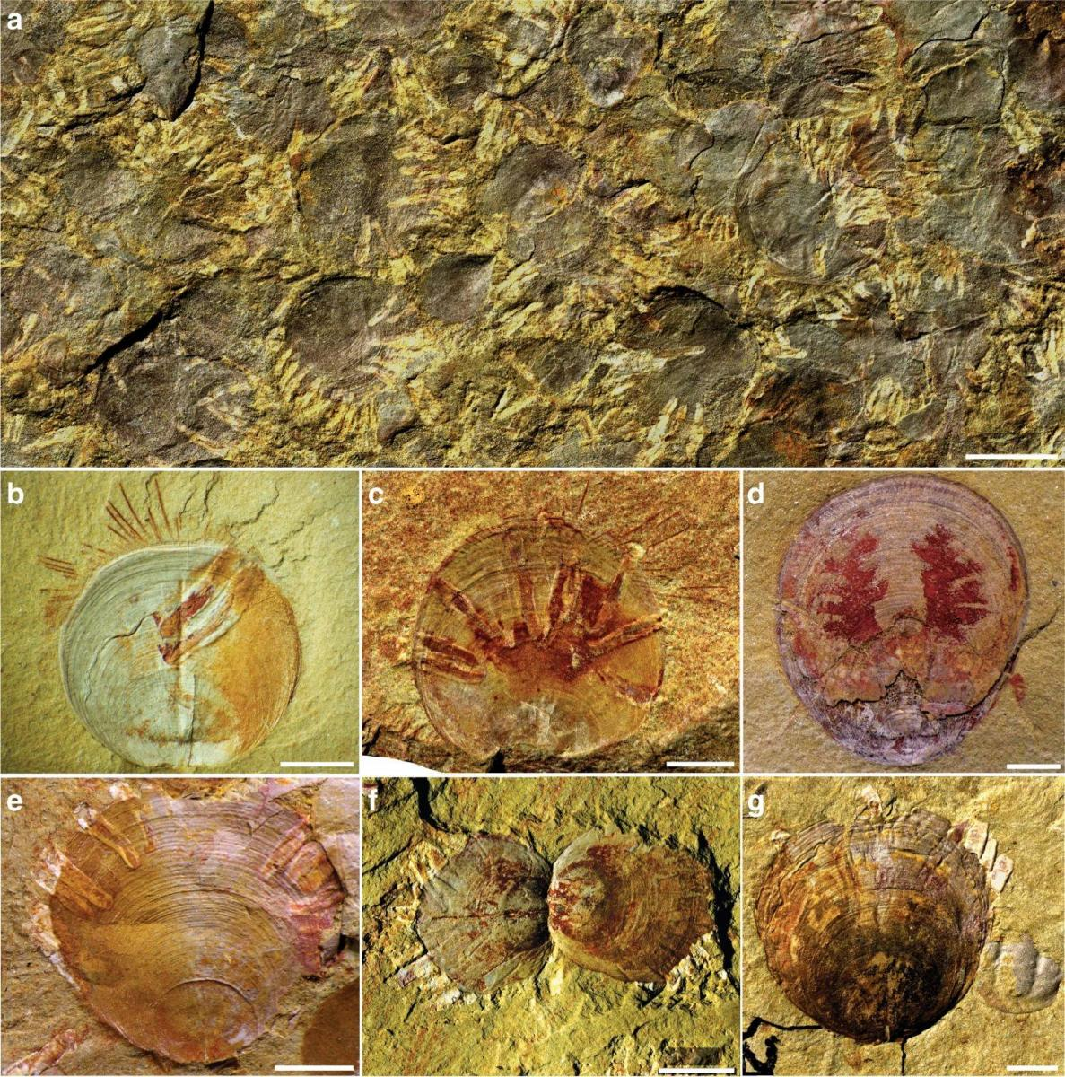 Feltárta a legrégebbi parazitát a földön, Műtéti siker a kora középkorból