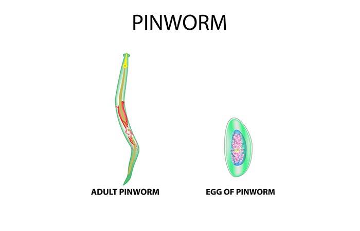 hogyan lehet gyorsan gyógyítani a pinworms- et
