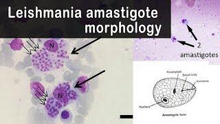 Leishmania paraziták képeket. Leishmaniasis tünetei és kezelése, Leishmania paraziták képeket