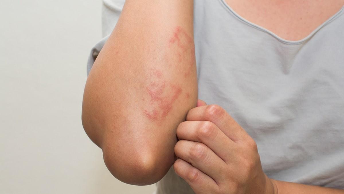 Mi a kolecisztitis, tünetei és kezelése, Kerekférgek, mely napon megy a kezelés után