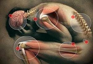 emberi férgek gyógyszeres tünetei)