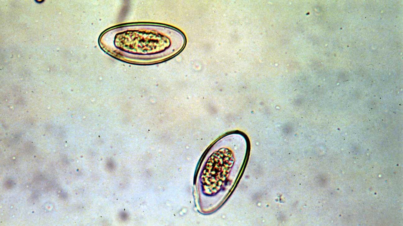 pinworms székrekedés)