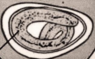 a pinworms életciklusa)