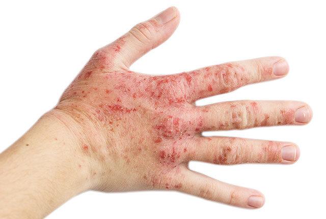 kerekféreg és allergiák