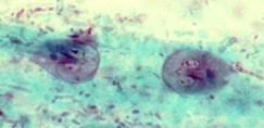 giardia antigen cpt code tippek a paraziták kezelésére