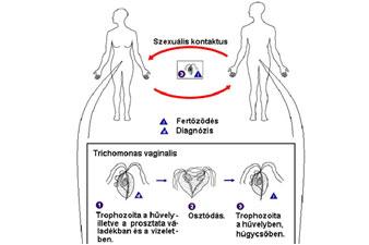 parazita chlamydia kezelés