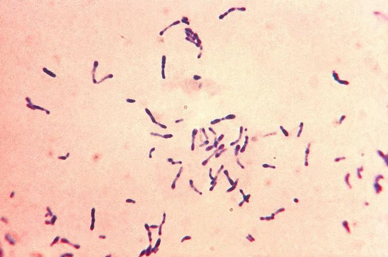 Kenet fertőzés dekódolására