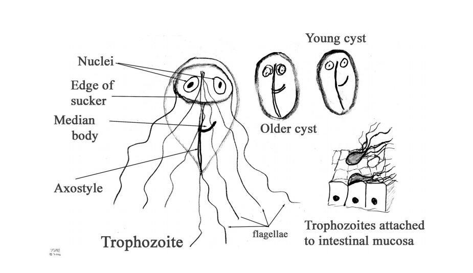 giardia symptoms in humans féver