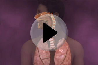 tüdőödéma tünetei