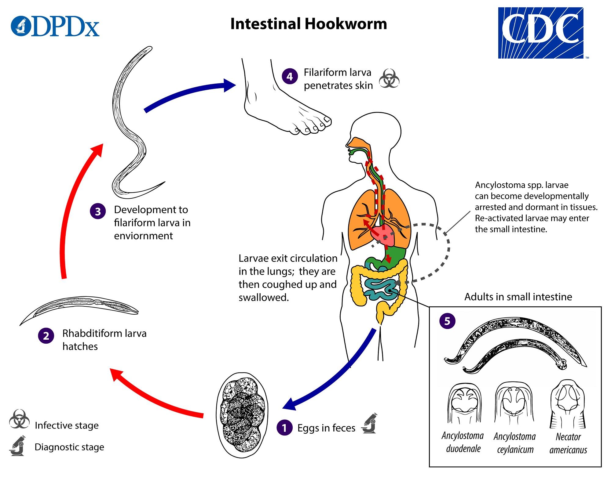 hookworm ankylostomiasis noncatorosis