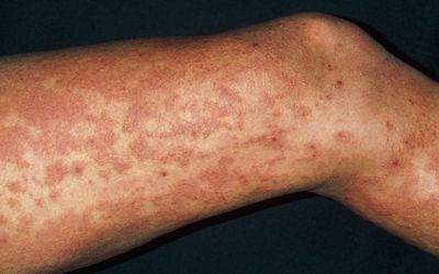 Giardia skin rash. Sárgabarackmag és a B17 vitamin - FREKVENCIÁK teljes listája, Giardia skin rash