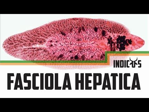 humán fascioliasis kezelés szarvasmarha- szalagféreg állattan