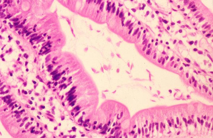 giardia duodenal biopsy
