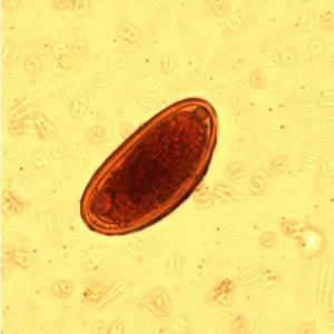 Mikroszkóp pinworm tojás)