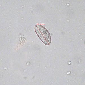 enterobiasis vizsgálat)