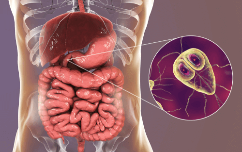 giardia symptoms and treatment in humans)