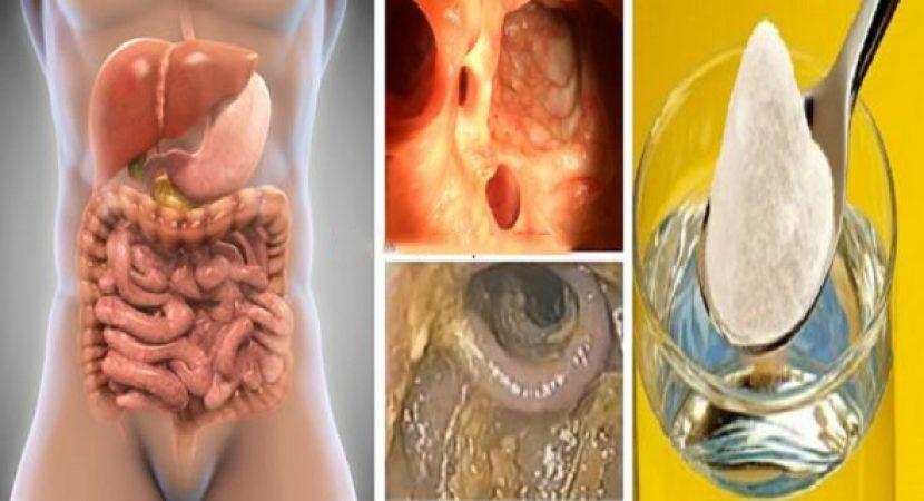 A hymenolepidosis egy betegség)