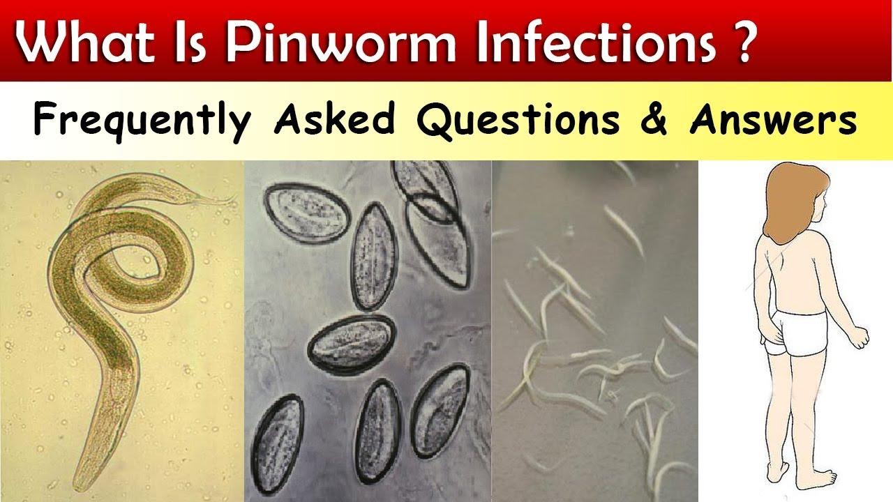 pinworm tojások mikroszkóp alatt a scotch szalagon)