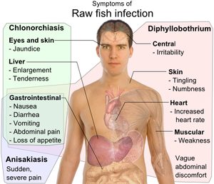 diphyllobothriasis tünetek