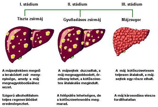 férgek a máj tünetei és kezelése)