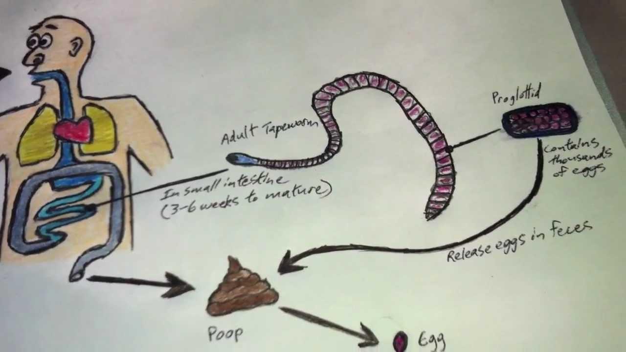 Diphyllobothriasis sügér. Dr. Diag - Diphyllobothrium latum infestatio