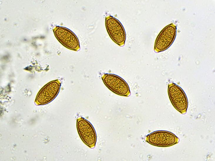 a pinworm fertőzés útjai