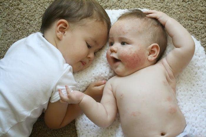 baba ekcéma kezelése