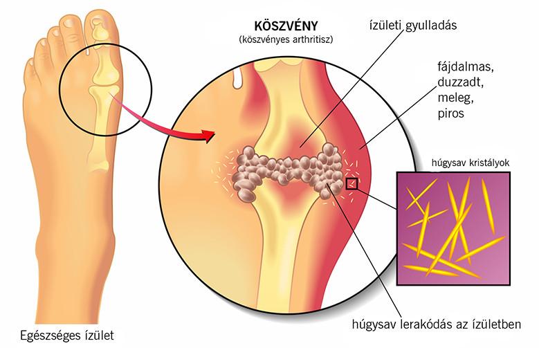 felnőttkori helminthiasis tüneti kezelés)