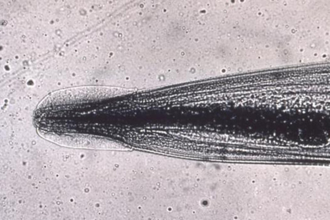 szaporító pinworms