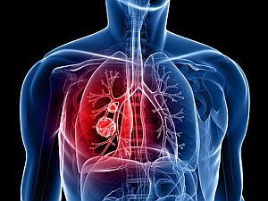Tüdőrák jelei | BENU Gyógyszertárak