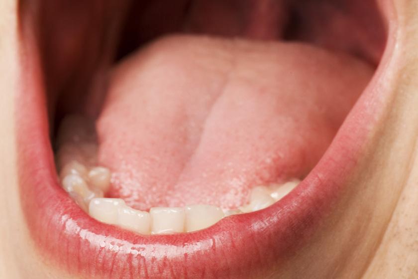 száj a vesén keresztül
