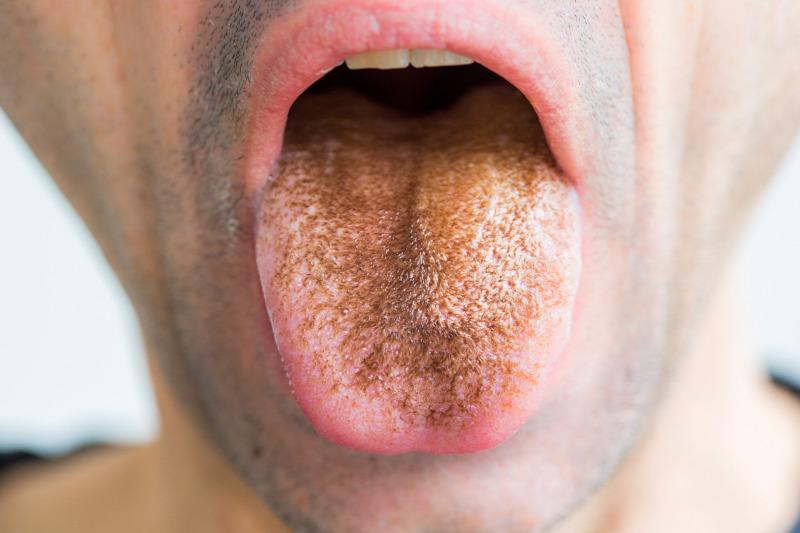 A rossz lehelet és a fehér nyelv okozza, A szájban hemzsegnek a baktériumok