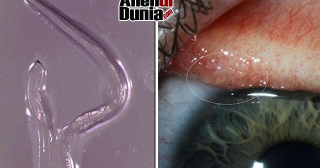 a paraziták megszabadulásának sémái gyógyszer gyermekeknél a kerekes férgek ellen