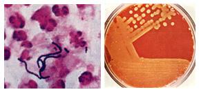 A streptococcus spp kenetben férfiakban)