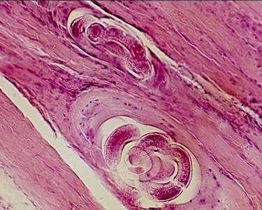 A trichinózis fertőző betegség)