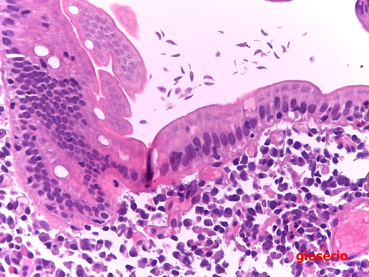 Giardia duodenális biopsziája