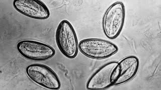 Hány pinworm tojás él a környezetben. Hány pinworm tojás él a környezetben