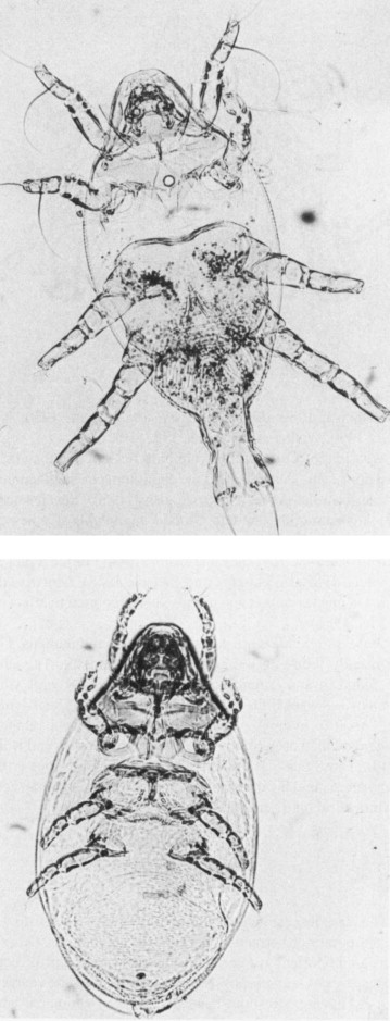 helminthes hematophages)