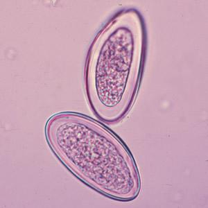 az enterobiasis diagnosztizálása)