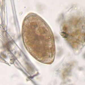 Fascioliasis a fertőzés terjedése