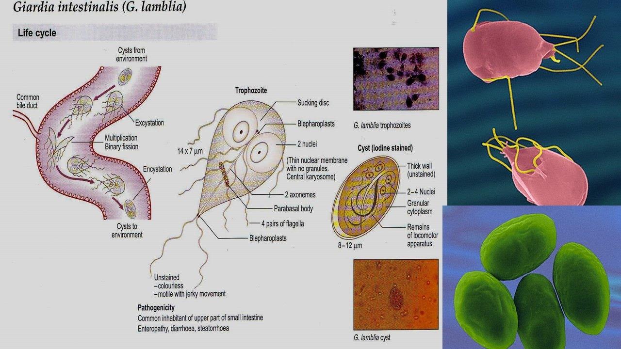 giardiasis mi ez a betegség tünetei