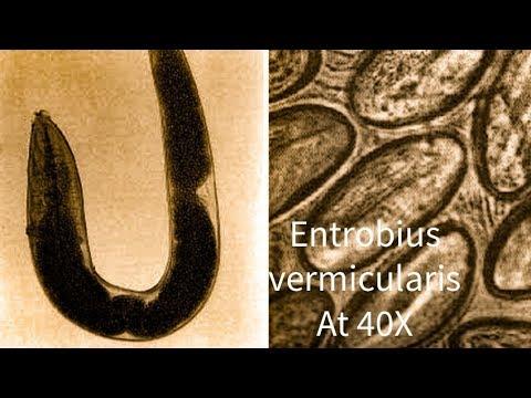 Enterobiasis etiológiája - Milyen gyógyszerek az összes férgek számára?